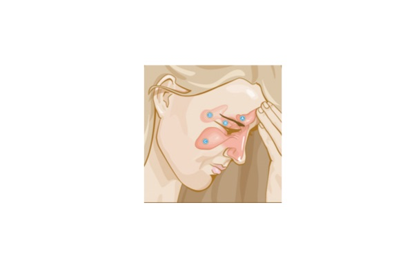 Do I have sinus headache or migraine? – Migraine Canada