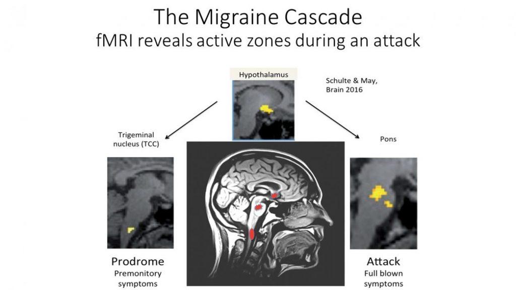 migraine cascade