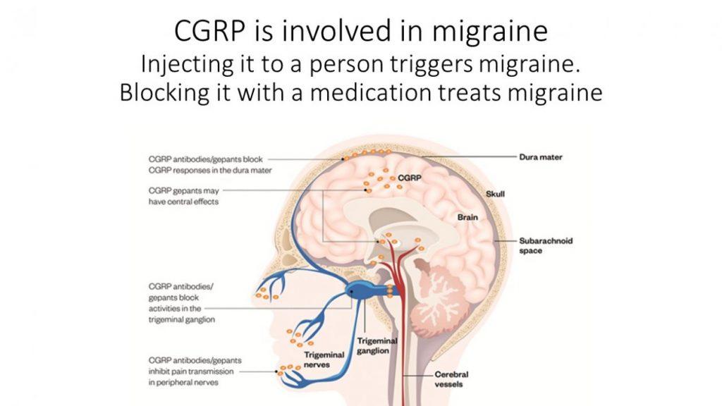 cgrp and migraine