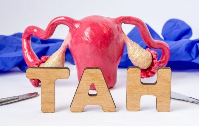 uterus treat migraine