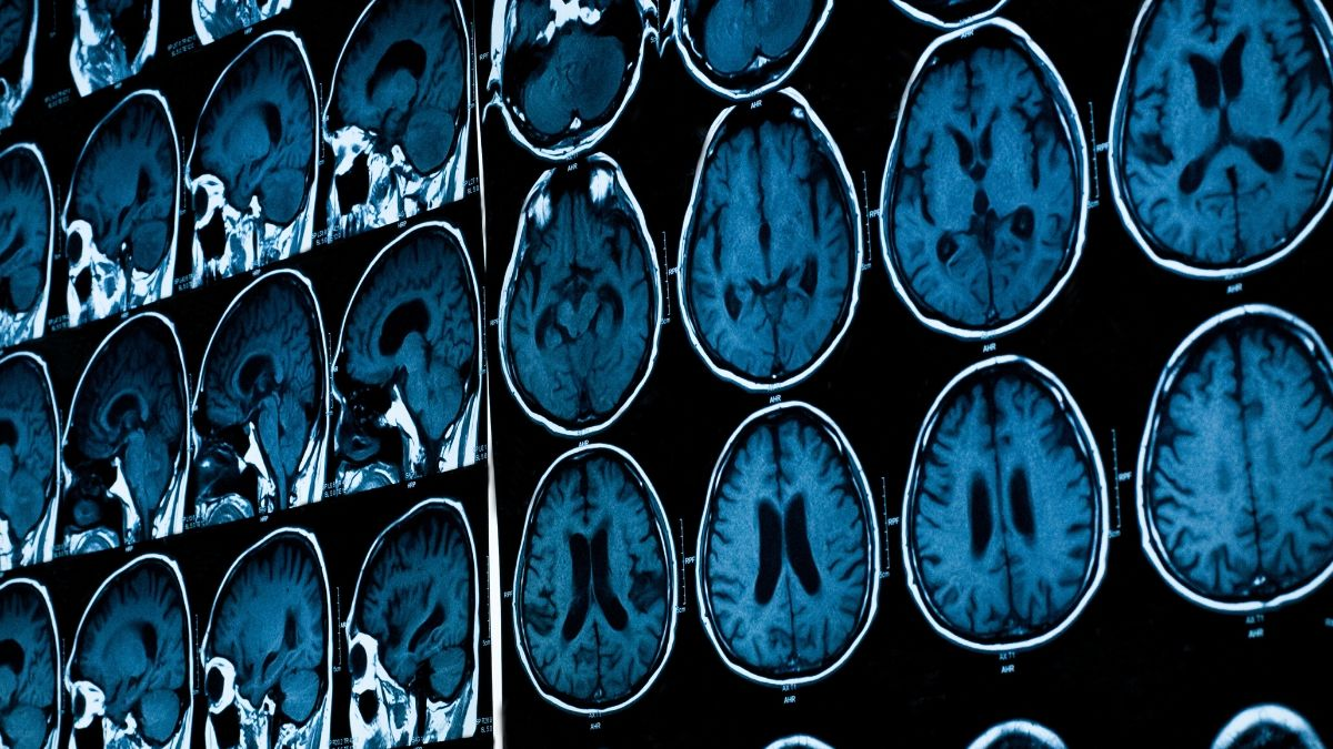 CT scan or an MRI to diagnose migraine